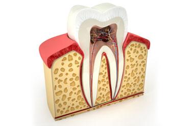 รักษารากฟัน