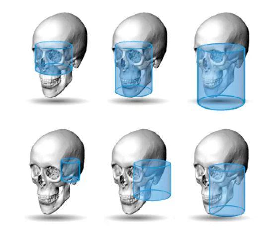 Planmeca ProMax 3D
