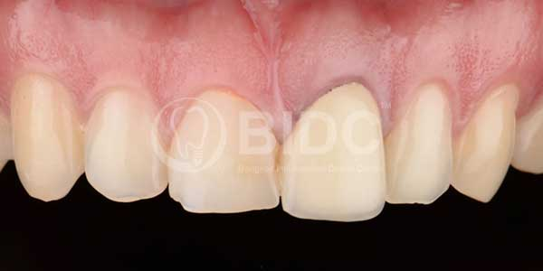 Case Gallery Dental Veneers