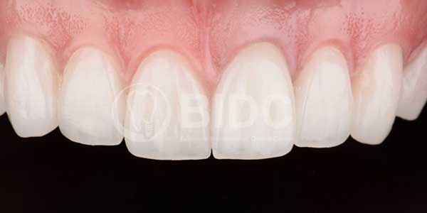 smile case veneers
