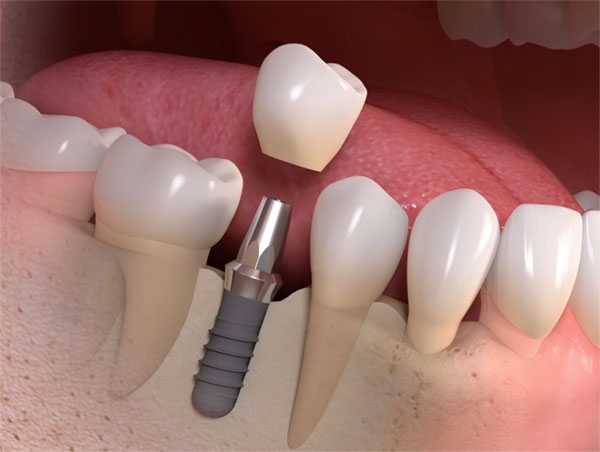 รากฟันเทียมแบบมีฟันทันที