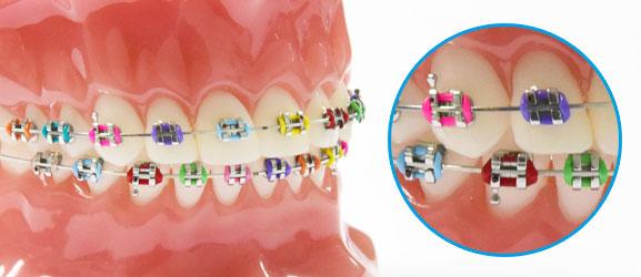 จัดฟันเหล็ก