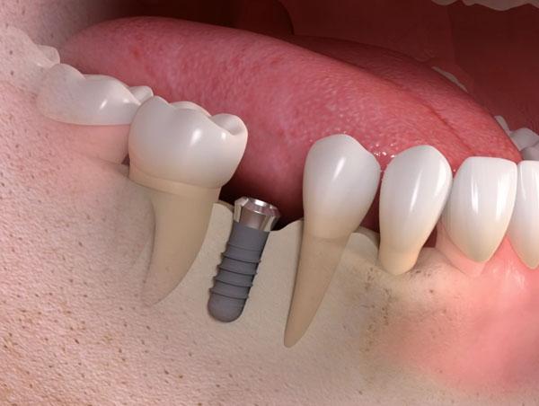 รากฟันเทียมแบบเดี่ยว
