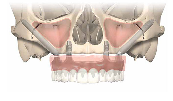 Nobel Biocare Zygoma Implants