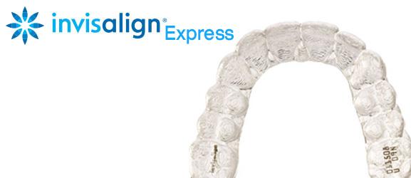 จัดฟัน Invisalign Express