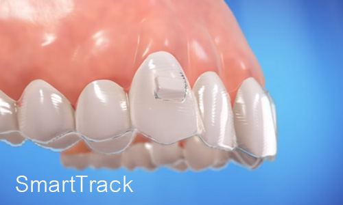invisalign smart track