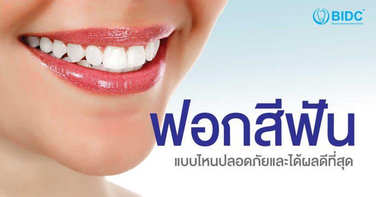 ฟอกสีฟัน