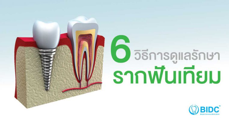ปลูกรากฟันเทียม