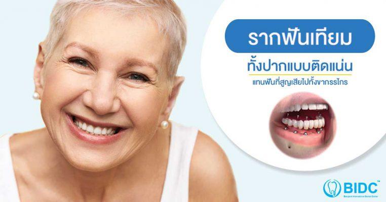 รากฟันเทียมทั้งปาก
