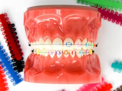 จัดฟันเซรามิก