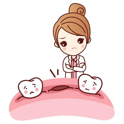 ขั้นตอนการรักษารากฟันเทียมที่ 1