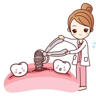 ขั้นตอนการรักษารากฟันเทียมที่ 2