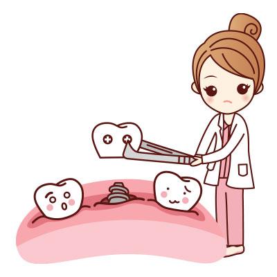 ขั้นตอนการรักษารากฟันเทียมที่ 3