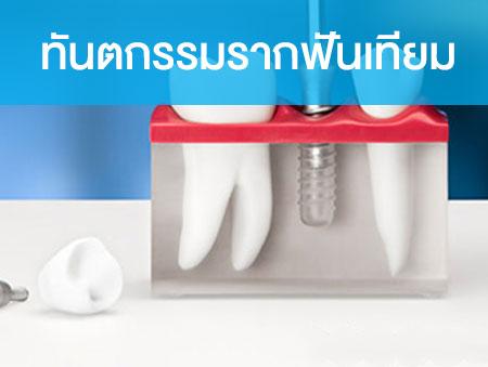 ทันตกรรมรากฟันเทียม