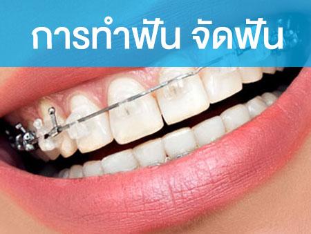 การทำฟัน จัดฟัน