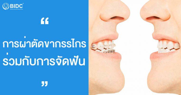 การจัดฟันร่วมกับการผ่าตัดขากรรไกร