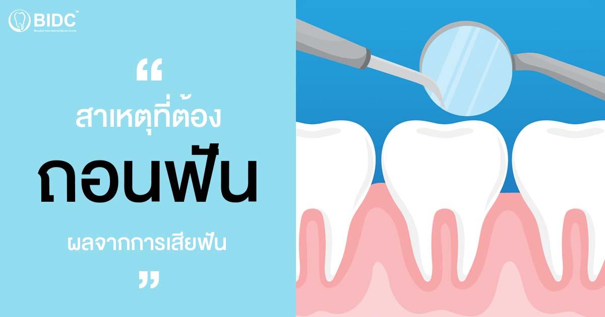 ถอนฟัน